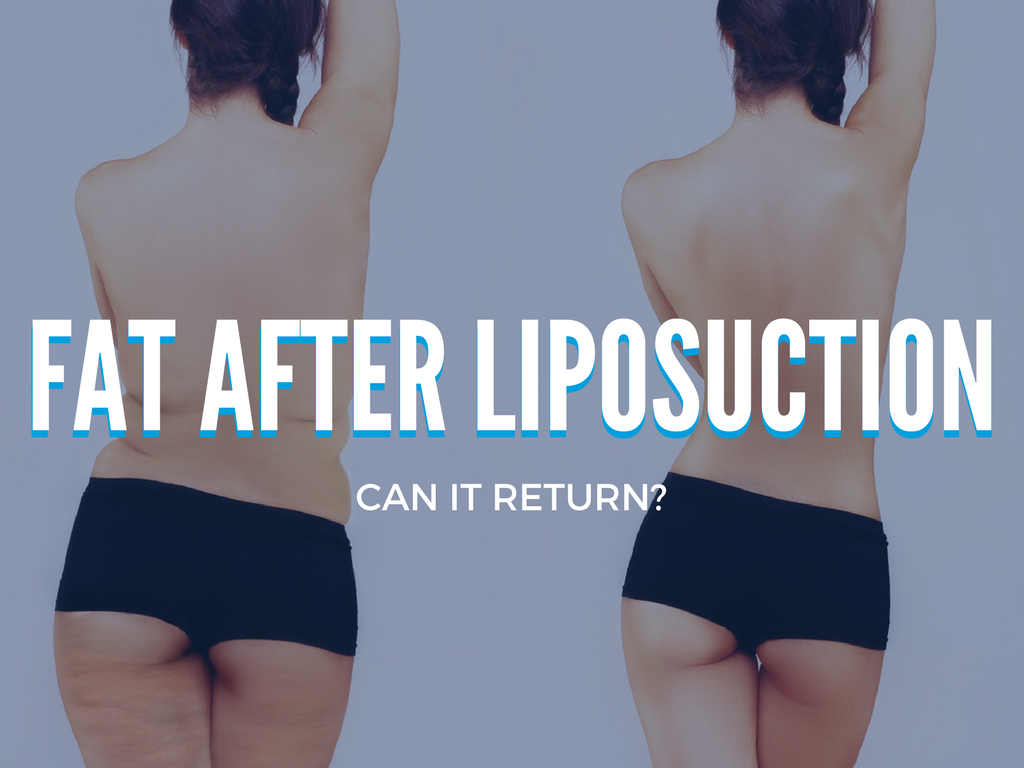 Can Fat Return After Liposuction Wall Street Cosmetic Surgery