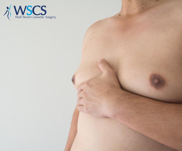 A man with gynecomastia grabbing at his chest