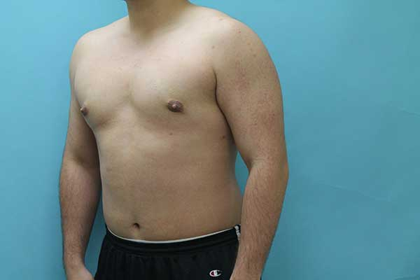 Gynecomastia Surgery NYC | Long Island | Male Breast Reduction NYC
