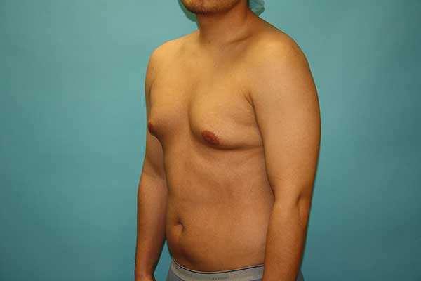 Male Breast Reduction Long Island | NYC | Gynecomastia Surgery Long Island