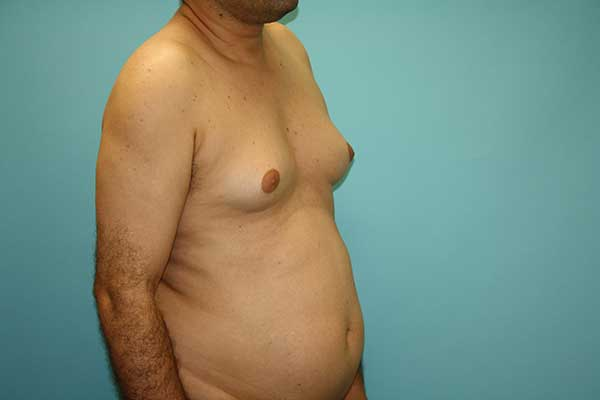 Male Breast Reduction Long Island | Long Island | Gynecomastia Surgery Long Island