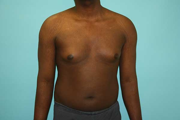 Male Breast Reduction NYC | Long Island | Gynecomastia Surgery Long Island