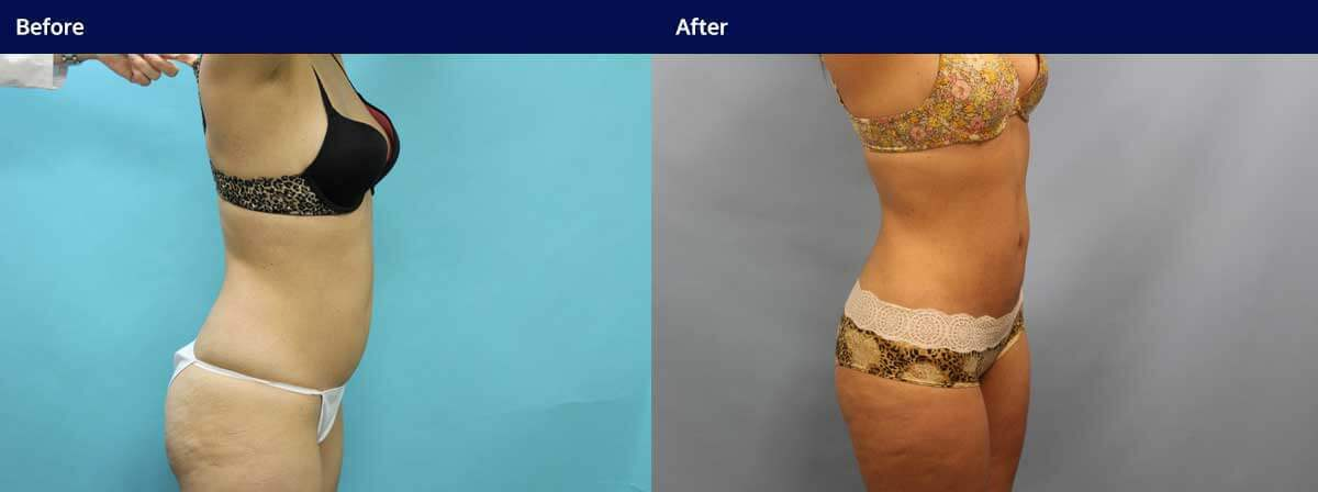 Liposuction Surgery Long Island | NYC | Wall Street Cosmetic Surgery