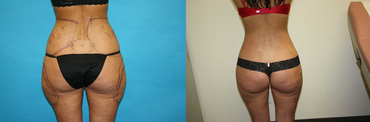 Tummy Tuck Surgery NYC | SmartLipo Long Island | Wall Street Cosmetic Surgery