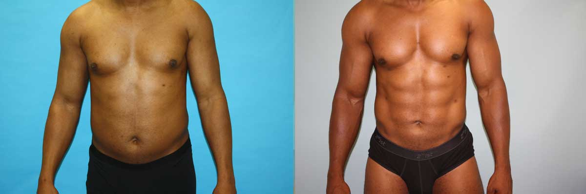 Tummy Tuck Surgery Long Island | NYC | Wall Street Cosmetic Surgery