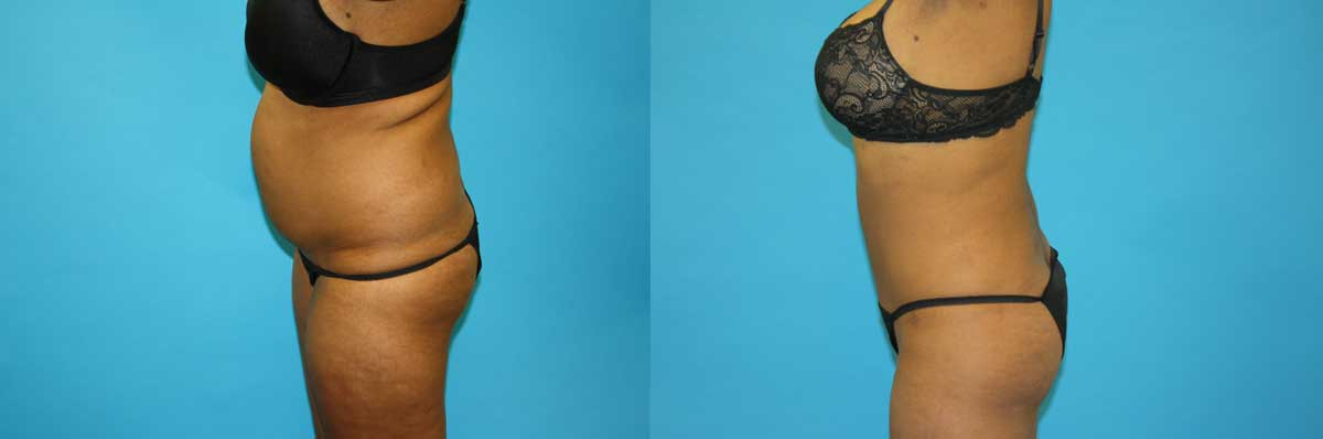 SmartLipo Long Island | NYC |  Laser Liposuction NYC