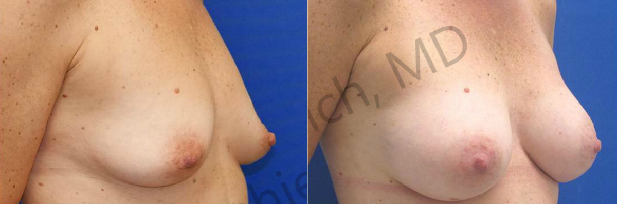 Breast Augmentation NYC | Laser Liposuction Long Island | NYC