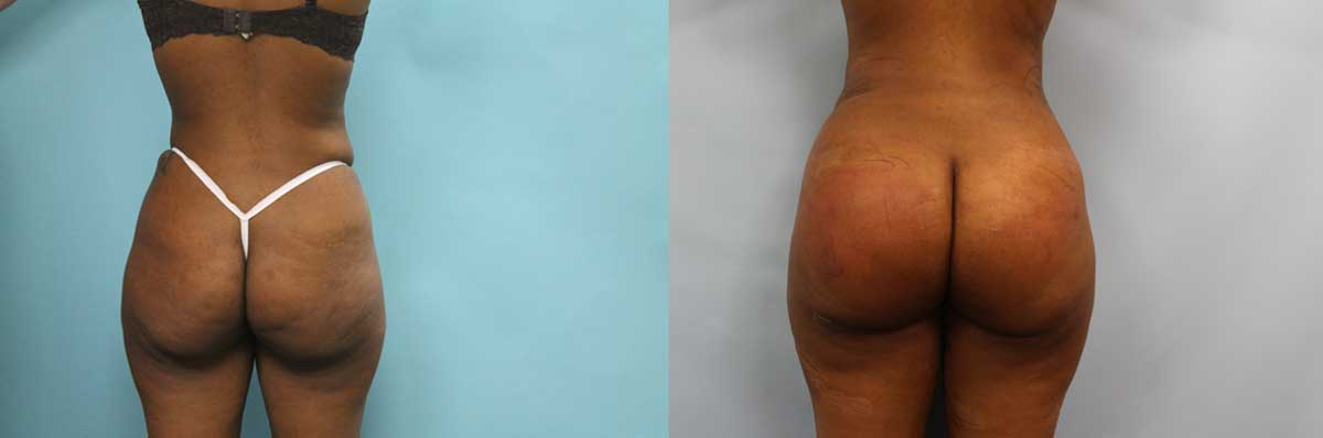 Butt Lift Surgery NYC | Long Island | Brazilian Butt Lift NYC