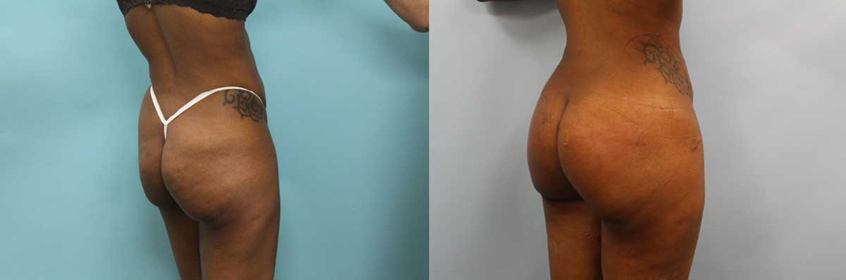 Brazilian Butt Lift NYC | Long Island | Butt Lift Surgery Long Island