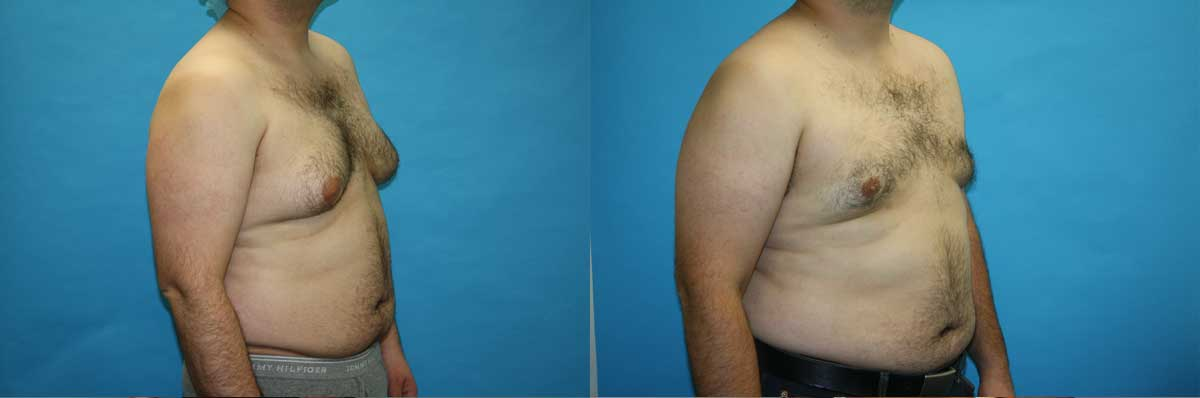 Gynecomastia Treatment NYC | Long Island | Male Breast Reduction NYC