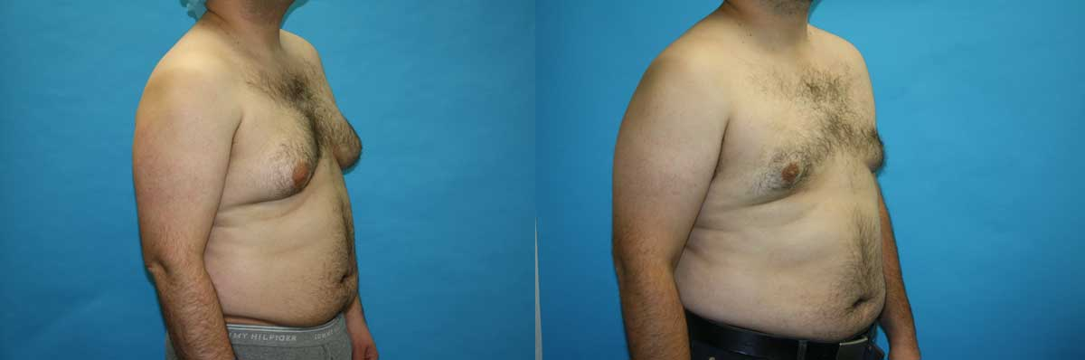 Male Breast Reduction NYC | Long Island | Gynecomastia Treatment NYC