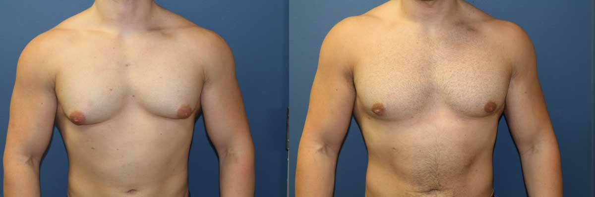 Gynecomastia Long Island | NYC | Male Breast Reduction Long Island