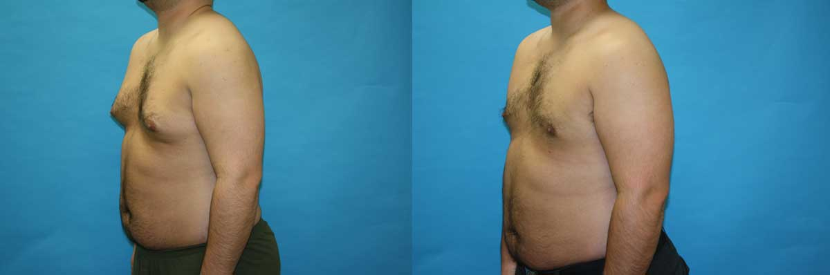 Gynecomastia Treatment NYC | Long Island | Male Breast Reduction Long Island