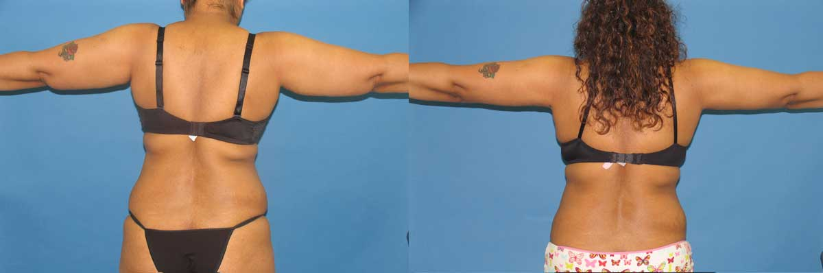 SmartLipo NYC | Long Island |  Laser Liposuction NYC