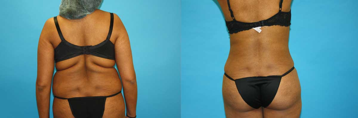 SmartLipo NYC | Long Island | Liposuction Surgery Long Island