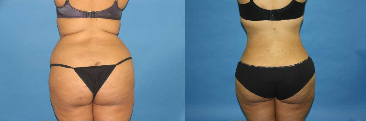 Laser Liposuction Long Island | NYC | SmartLipo NYC
