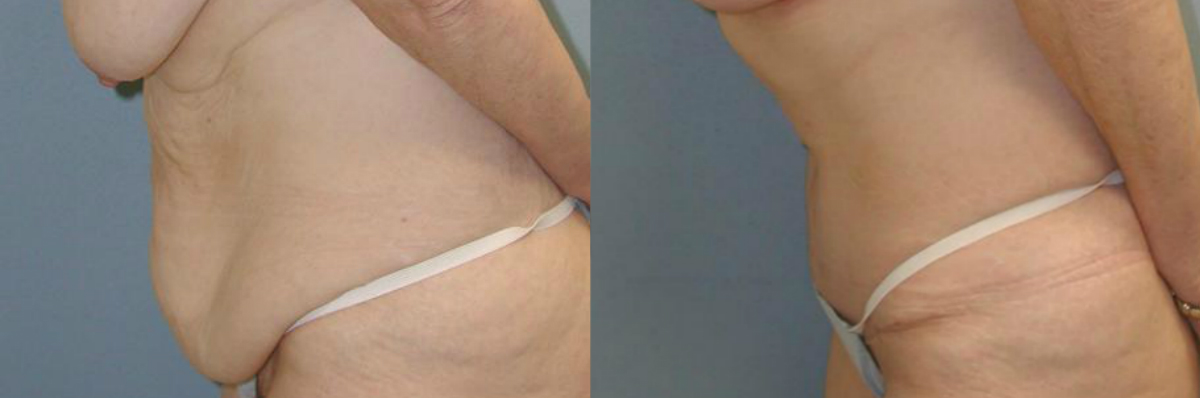 Tummy Tuck Surgery Long Island | Liposuction Surgery NYC | Wall Street Cosmetic Surgery