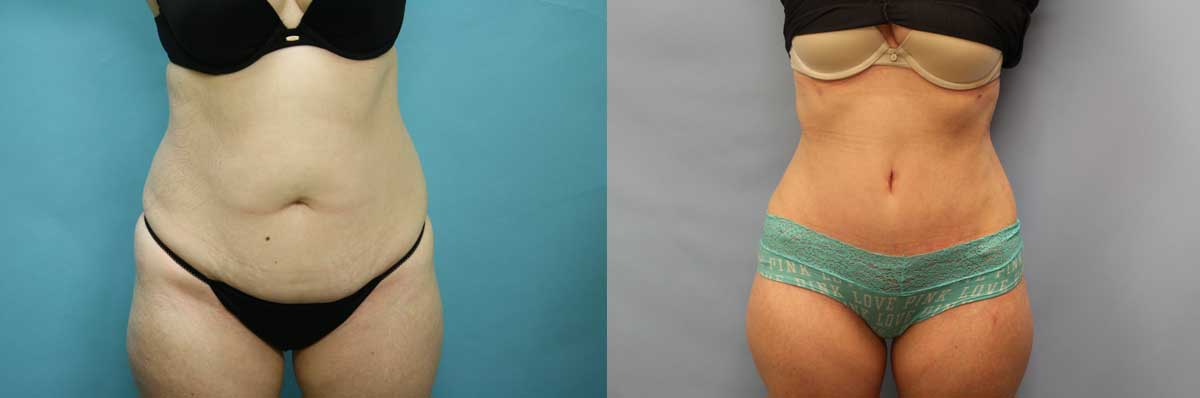 Tummy Tuck Surgery NYC | Liposuction Surgery Long Island | Wall Street Cosmetic Surgery
